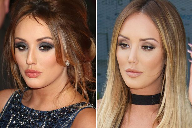 Celebrities Who Have Undergone Nose Surgery